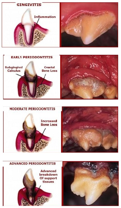 dental grading